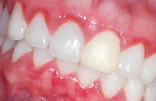 Гингивит: причины развития, симптомы, лечение гингивита в кабинете у стоматолога и народными средствами