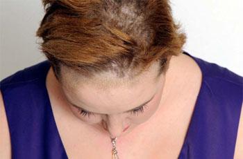 Грибок кожи (микоз): виды, лечение и фото