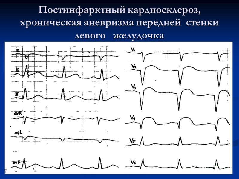 Атеросклеротический кардиосклероз: причины заболевания, основные симптомы, лечение и профилактика
