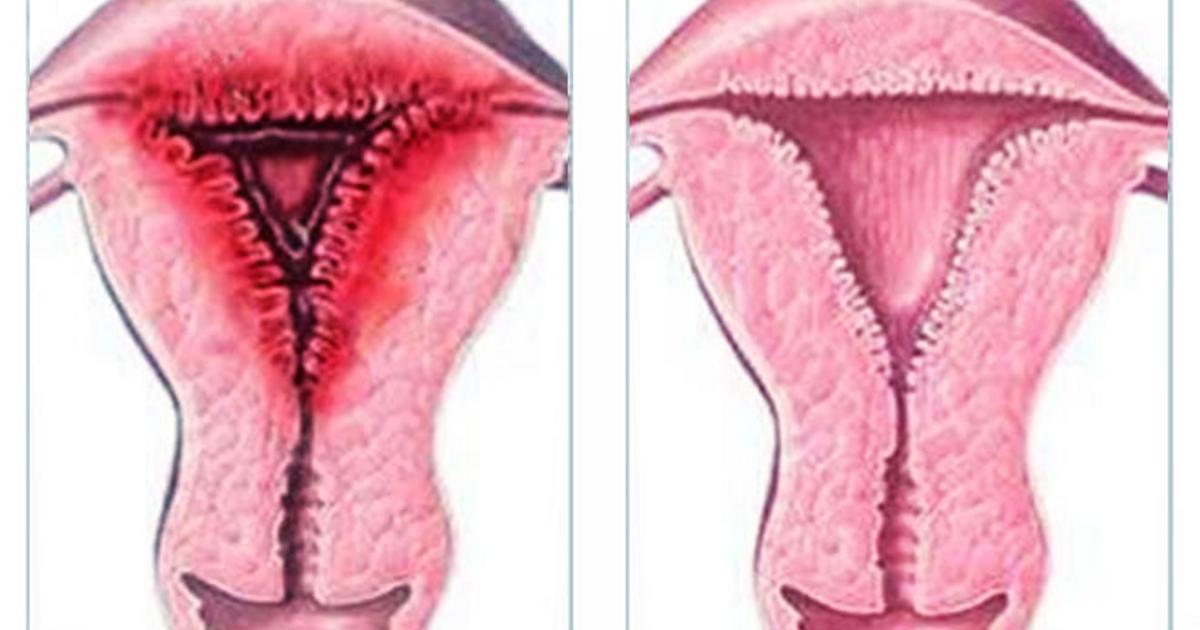 Железистая гиперплазия эндометрия