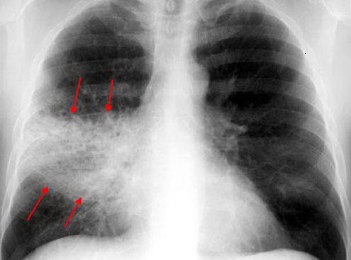 Крупозная пневмония у взрослых и детей — особенности течения болезни, лечение