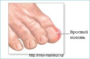 Белые полоски на ногтях: что означают, причины, лечение