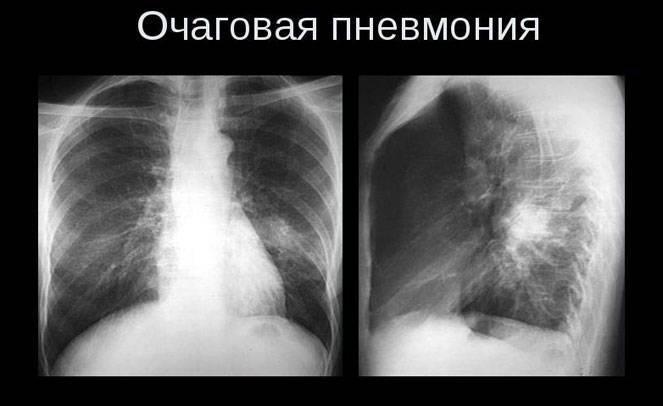 Пятна на лёгких при рентгене: какие могут быть причины?