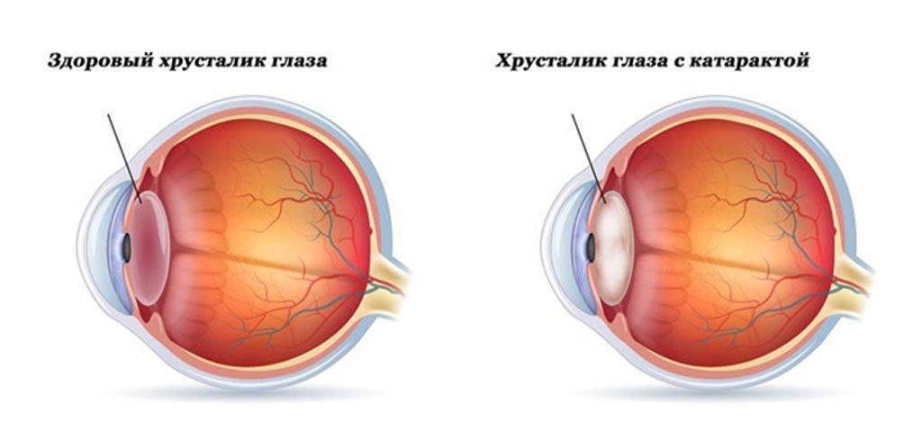 Выбор глазных капель от катаракты: полный список