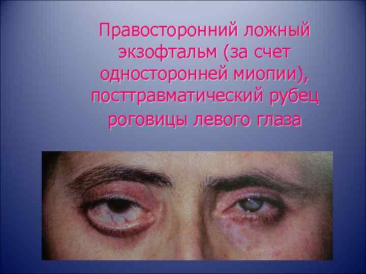 Есть ли эффективный метод лечения отечного экзофтальма и других форм болезни?
