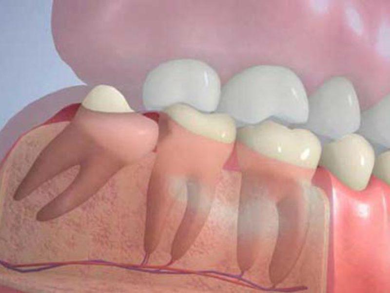 Что делать с зубом мудрости – лечить или удалять