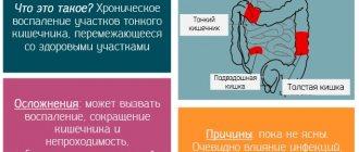 Характеристика препарата артелар и его применение