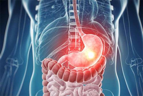 Недостаточность кардии желудка лечение народные средства
