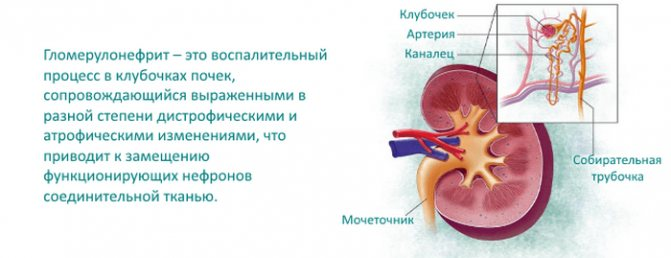 Острый гломерулонефрит. симптомы, формы заболевания, методы диагностики и лечения, диета. анализ мочи и крови при гломерулонефрите. :: polismed.com