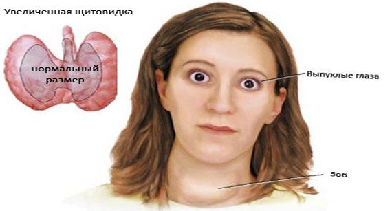 Зоб 2 степени щитовидной железы