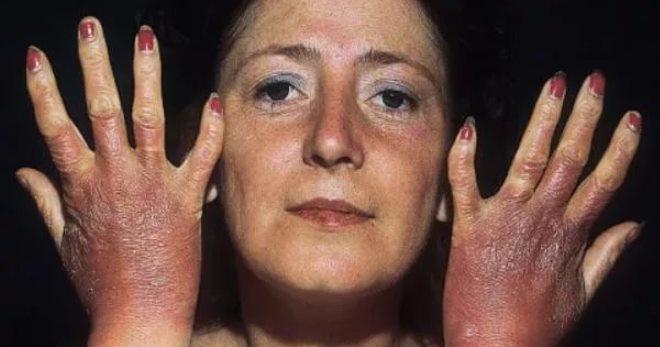 Болезнь аддисона: симптомы, лечение, диагностика, фото, причины