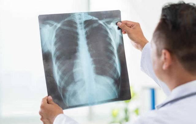 Застойная пневмония у лежачих больных – профилактика, прогноз, лечение