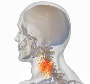 Как лечить остеохондроз шейного отдела позвоночника лекарствами и упражнениями