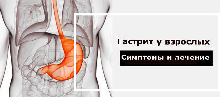 Острый гастрит: симптомы и лечение у взрослых