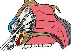 Кровохарканье: виды, способы лечение, симптомые