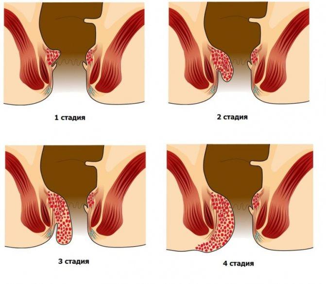 Причины зуда в заднем проходе и его лечение