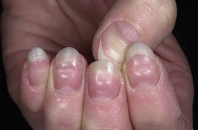 Как укрепить ногти, чтобы не слоились и не ломались в домашних условиях причина ломкости, как лечить
