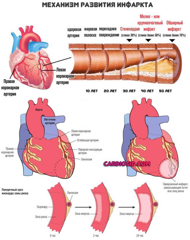 Препарат милдронат для профилактики и лечения патологий сердечно-сосудистой системы