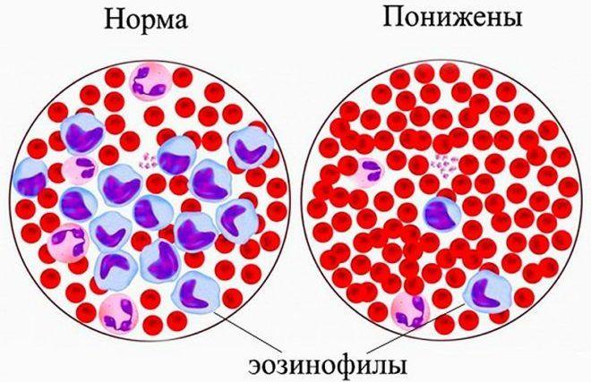 Эозинофилы повышены у взрослого — о чем это говорит, норма в крови, причины повышения