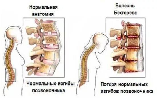 Болезнь бехтерева - симптомы  и лечение