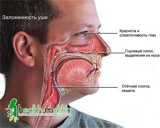 Аллергический насморк: симптомы и лечение. как распознать. отличия