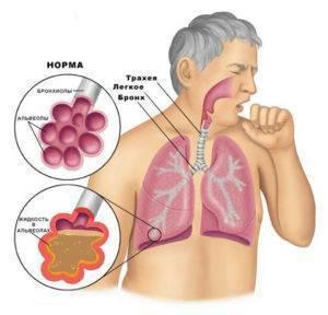 Почему возникает кашель после сна и как от него избавиться