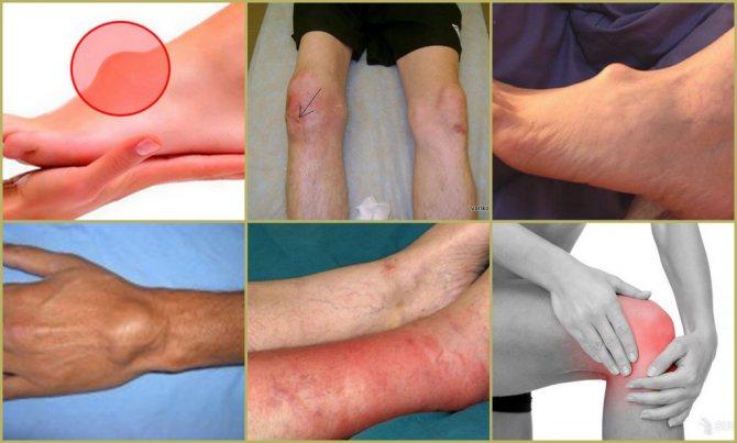 Гигрома запястья (гигрома лучезапястного сустава кисти): лечение, причины и симптомы патологии