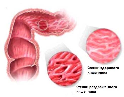Диета при синдроме раздраженного кишечника (срк) в три шага