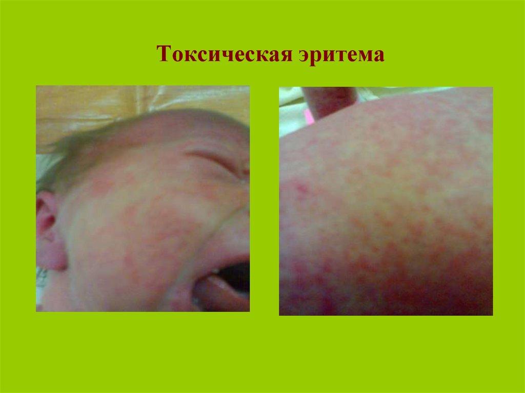 Инфекция цитомегаловирусная - симптомы  и лечение