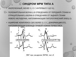 Синдром впв (wpw) – что это? синдром вольфа-паркинсона-уайта – признаки