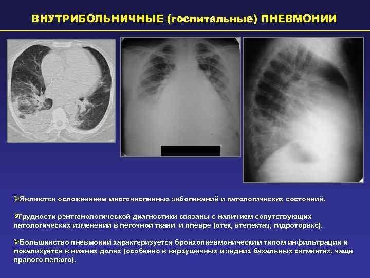 Глава 22. пневмония