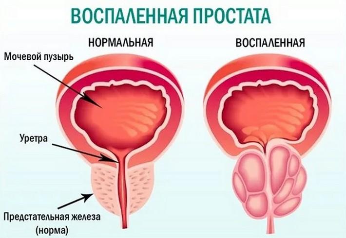 Воспаление простаты: симптомы и лечение