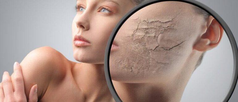 Грибок кожи на теле: симптомы, как и чем лечить