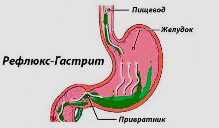 Желчекаменная болезнь: симптомы. камни в желчном пузыре: лечение и рекомендации по питанию