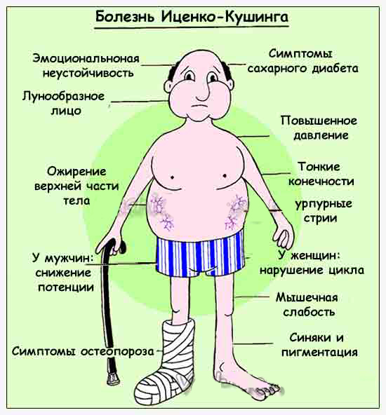 Болезнь иценко кушинга (гиперкортицизм). причины, симптомы, современная диагностика и лечение заболевания. :: polismed.com