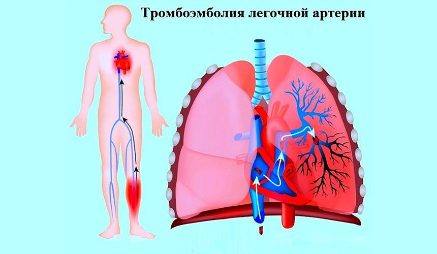 Причина образования тромбов в сосудах человека