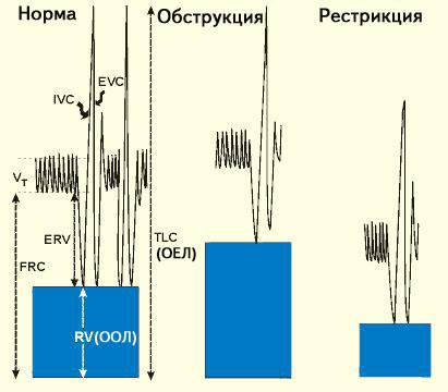 Что такое спирография и как ее проводят