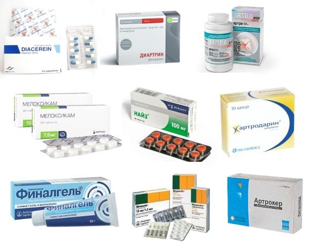 "Лекарство ""артрокер"": аналоги, инструкция, описание препарата, отзывы"