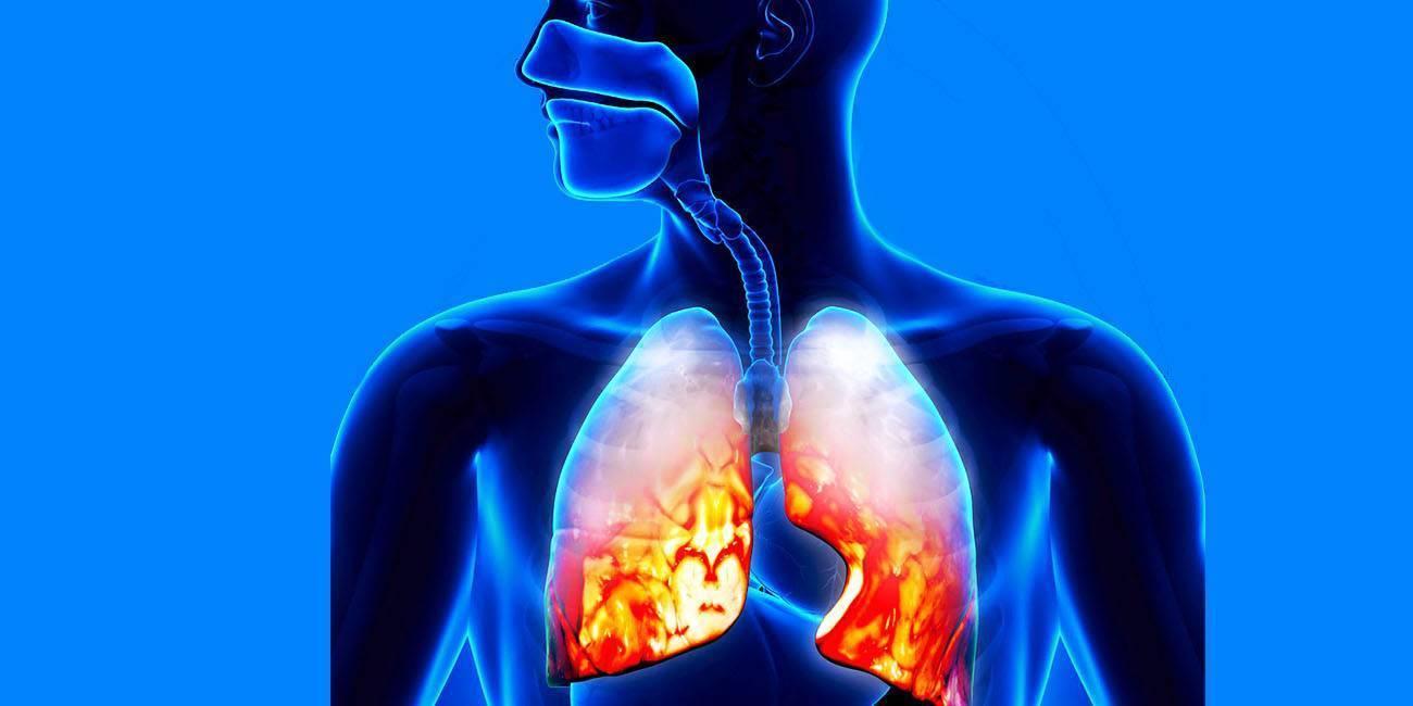 Заразные формы воспаления легких и их особенности