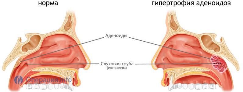 Как выглядят аденоиды в носу и как их лечить?