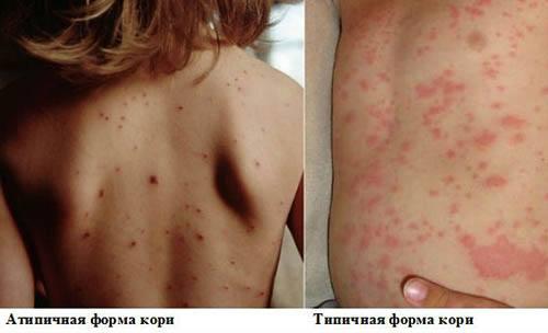 Корь — симптомы у детей, фото, лечение, профилактика и первые признаки кори