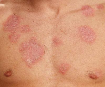 13 симптомов волчанки, которые опасно игнорировать