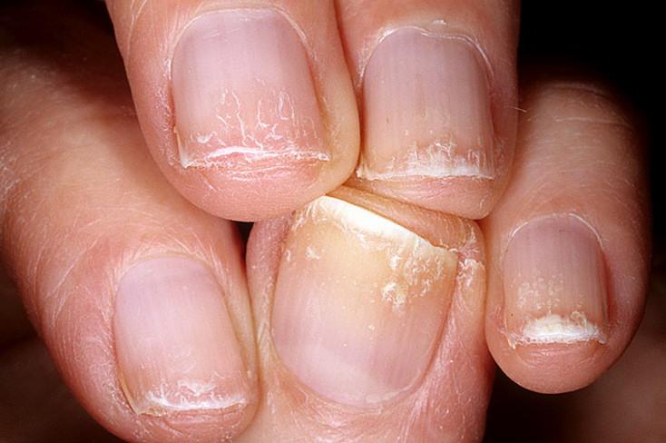 Ломкие ногти на руках: причины, лечение, витамины