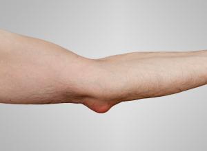 Локтевой бурсит: почему появляется заболевание, в чем опасность и как его лечить