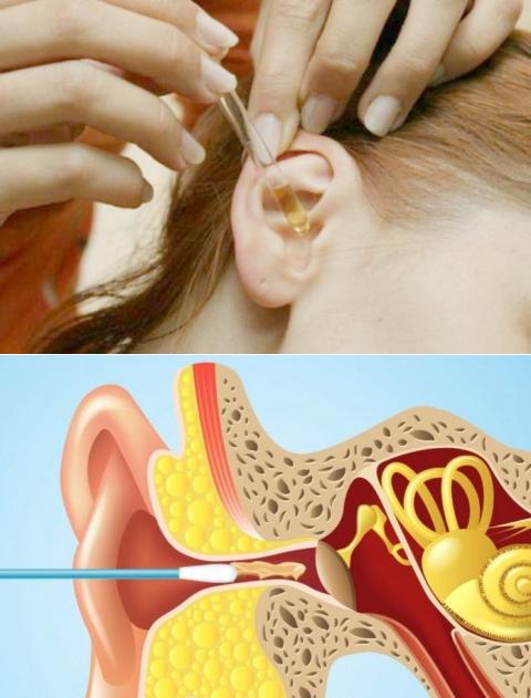 Что делать, если у ребенка в ушах серные пробки, как убрать в домашних условиях