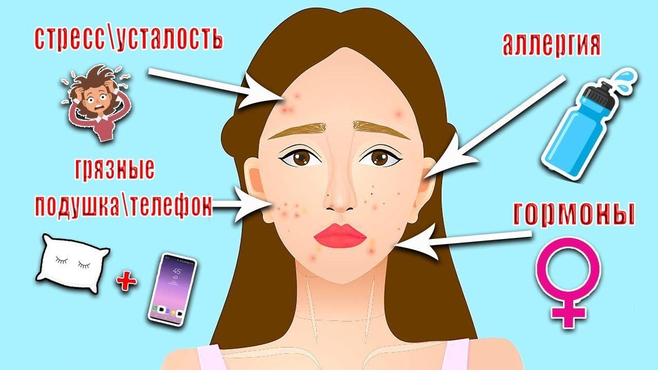 Причины возникновения и лечение атеромы