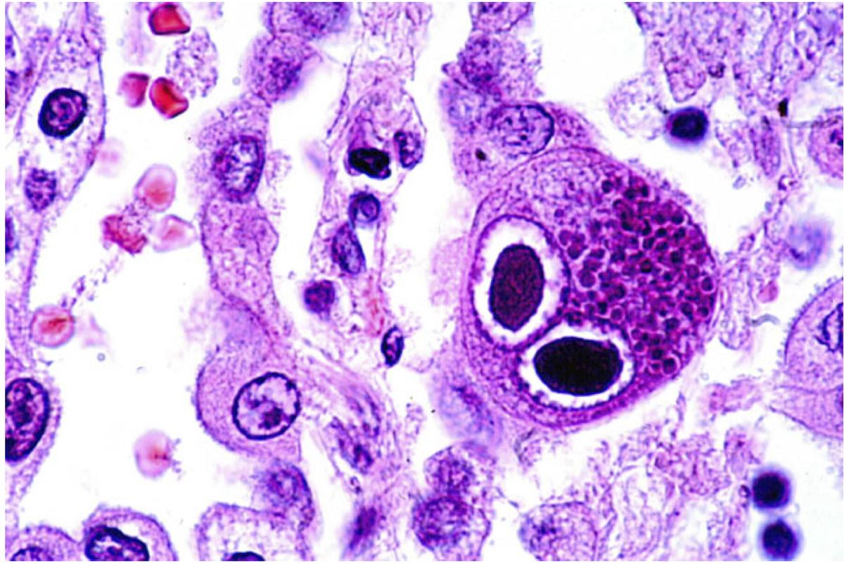 Особенности заражения цитомегаловирусной инфекцией у взрослых и детей: симптомы, диагностика, расшифровка анализов на цмв