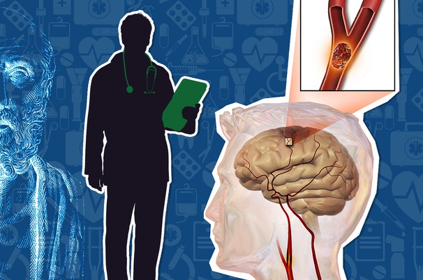 Ишемический инсульт: его симптомы и последствия. реабилитация и восстановление после инсульта