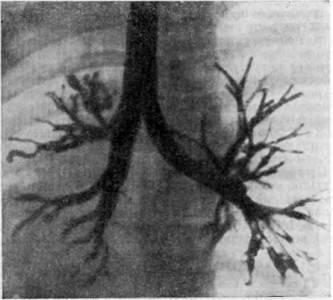 Симптомы, диагностика и лечение хронического обструктивного бронхита