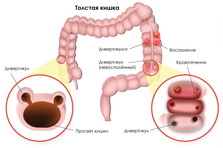 Дивертикулит. причины, симптомы, диагностика и лечение патологии :: polismed.com
